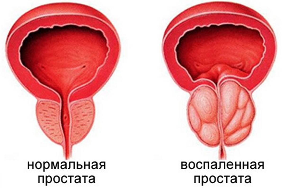 простатита лекарства народные средства