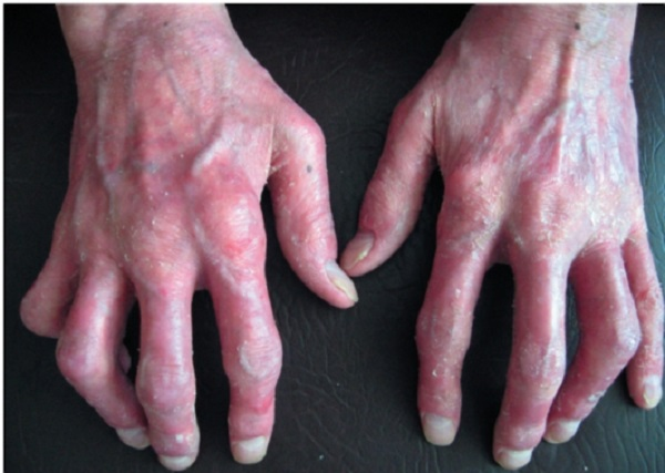 псориатический артрит фото