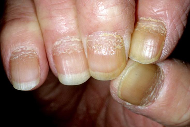 деформация ногтей при псориазе