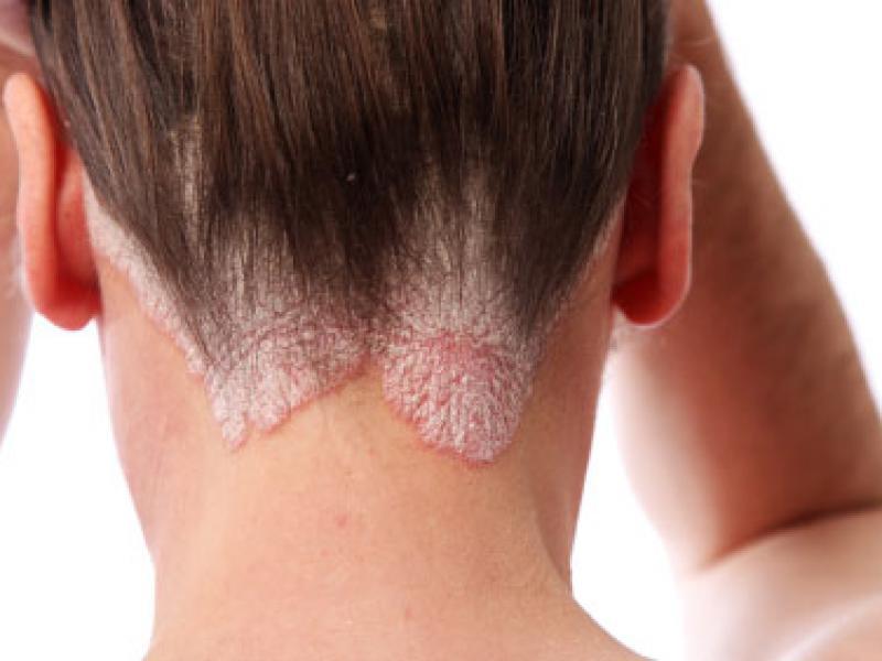 псориаз головы (волосистой части) фото