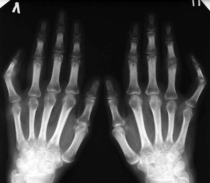 диагностика ревматоидного артрита, рентгенография