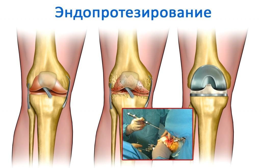 лечение ревматоидного артрита, протезирование сустава