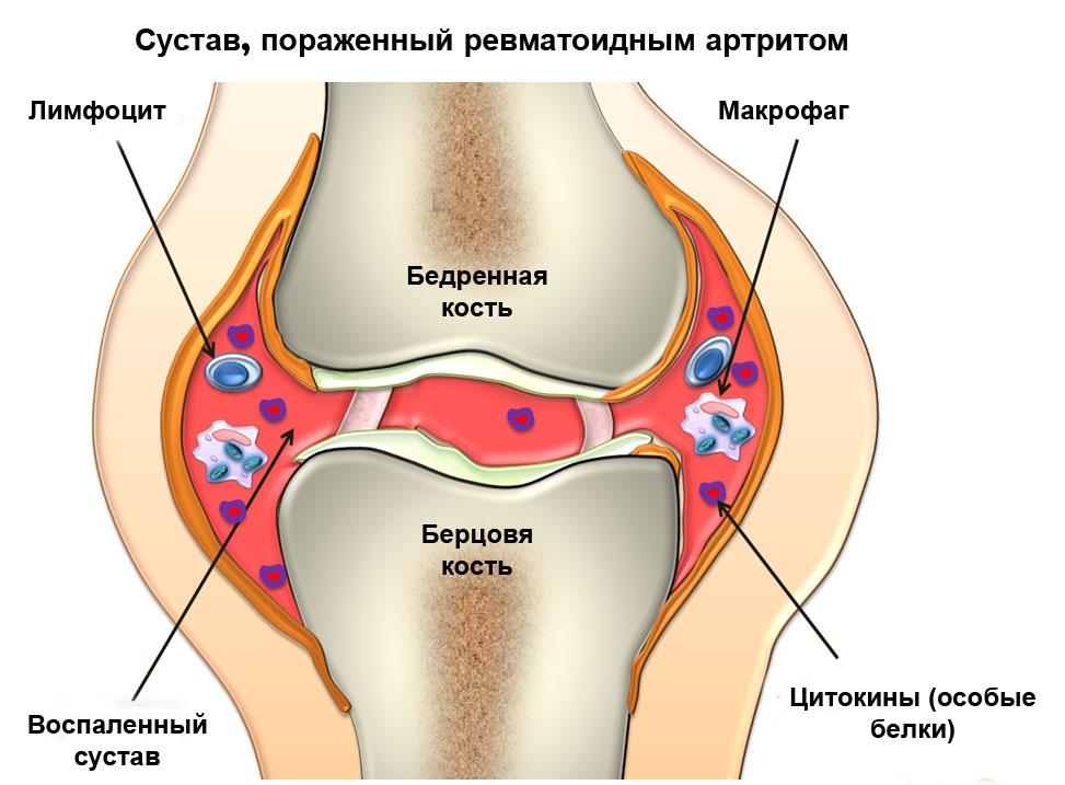 Ревматоидный артрит: симптомы, фото, диагностика и лечение