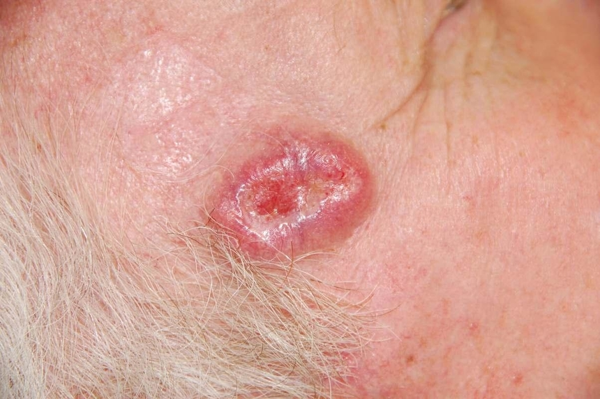 Симптомы, разновидности и стадии рака кожи: базалиома