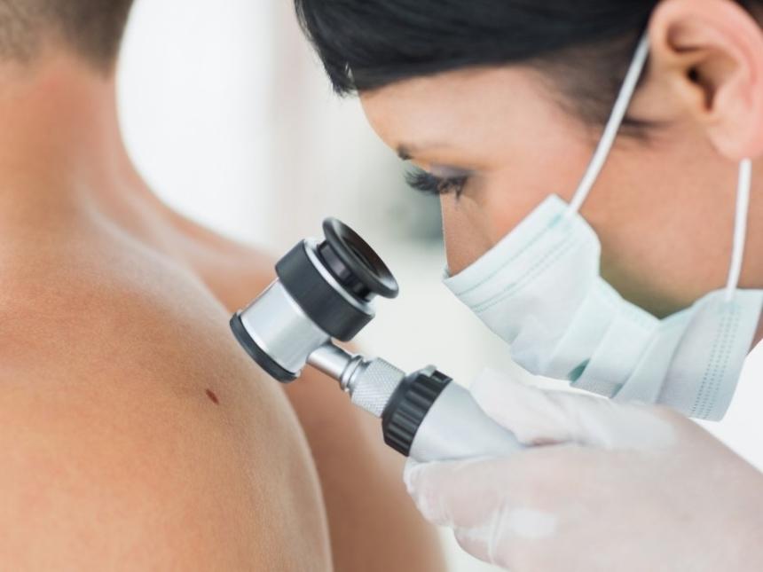 Диагностика рака кожи: дерматоскопия