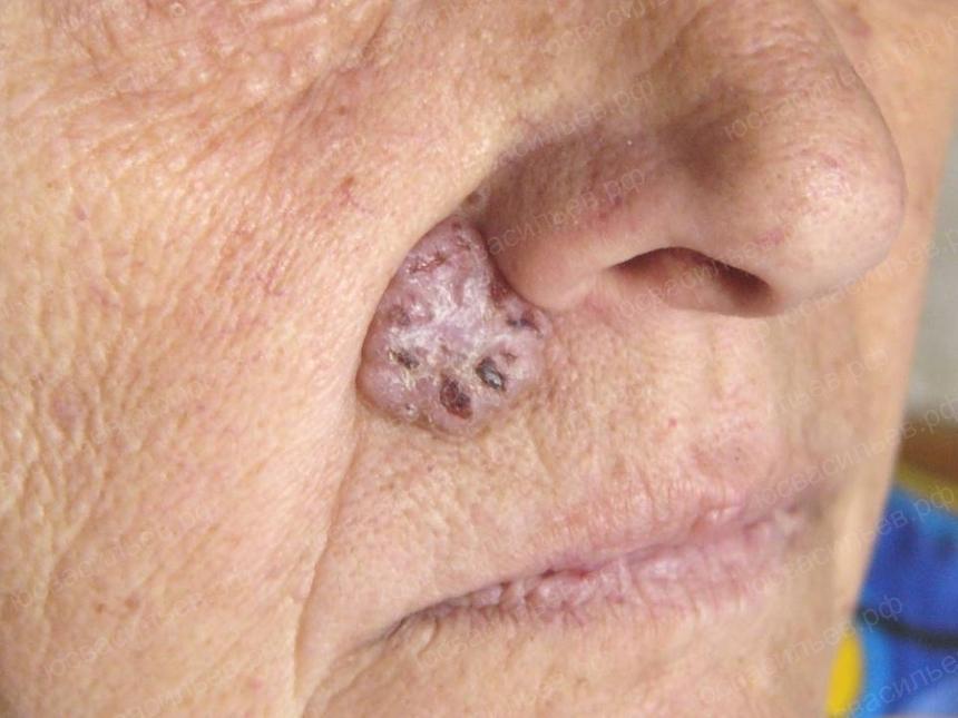 Что такое рак кожи