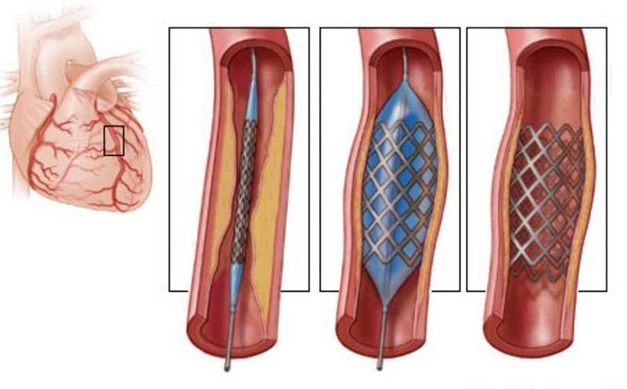 лечение стенокардии - баллонная ангиопластика и стентирование