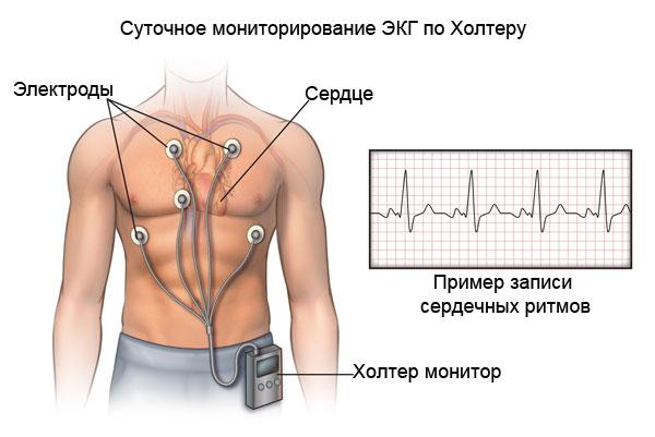 диагностика стенокардии- холтеровское мониторирование ЭКГ