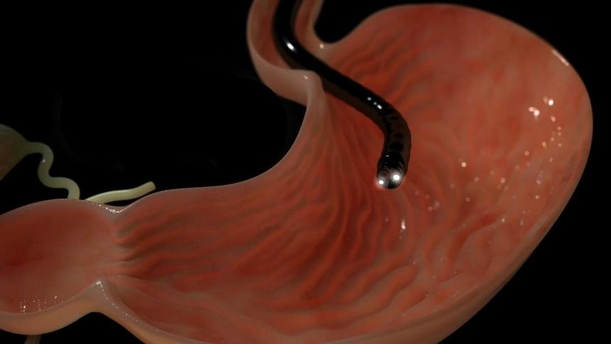 Диагностика рака желудка: гастроскопия