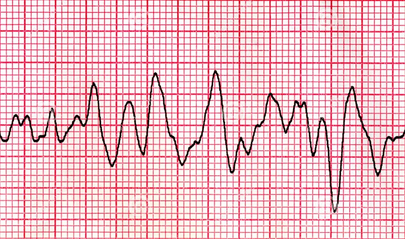 ЭКГ при фибрилляции желудочков