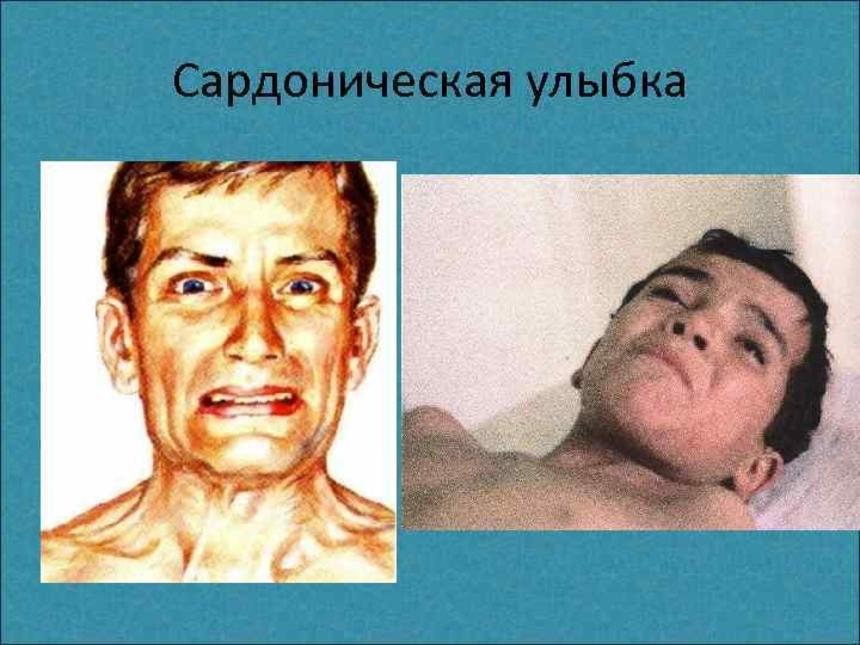 Симптомы столбняка: сардоническая улыбка