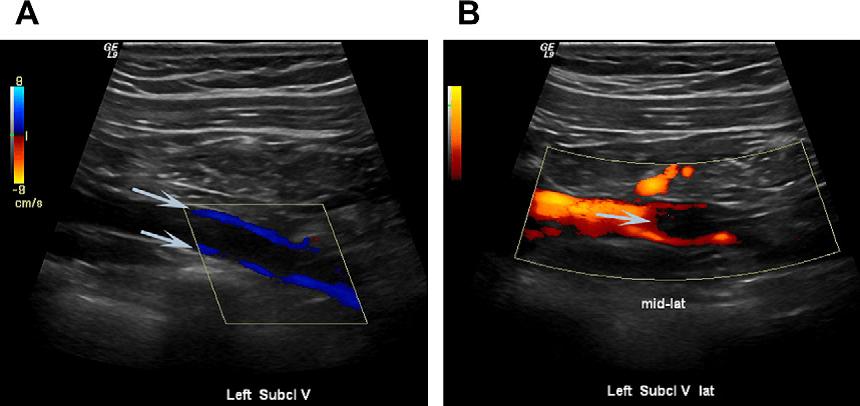Диагностика тромбофлебита: Ультразвуковое исследование вен при тромбофлебите