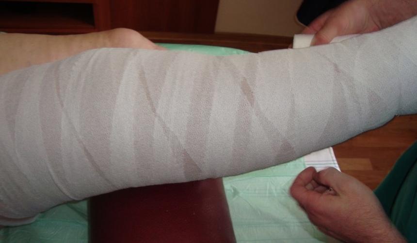Лечение тромбофлебита: Эластичное бинтование ноги при тромбофлебите