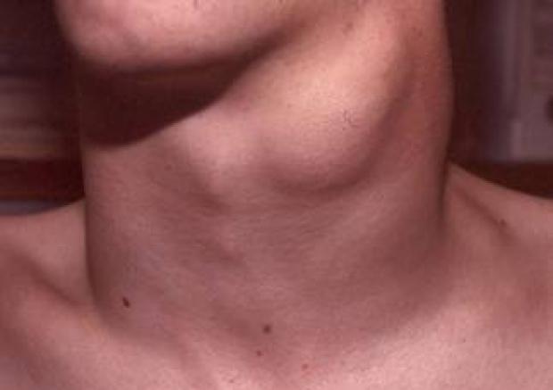 Симптомы, виды и стадии рака щитовидной железы