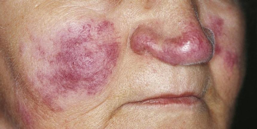 Разновидности туберкулеза: туберкулез кожи
