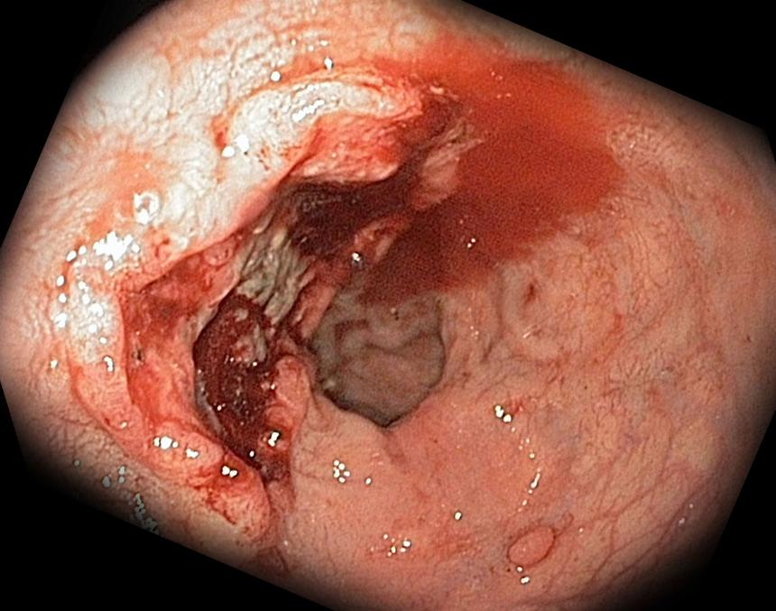 Осложнения язвы желудка: язвенное кровотечение