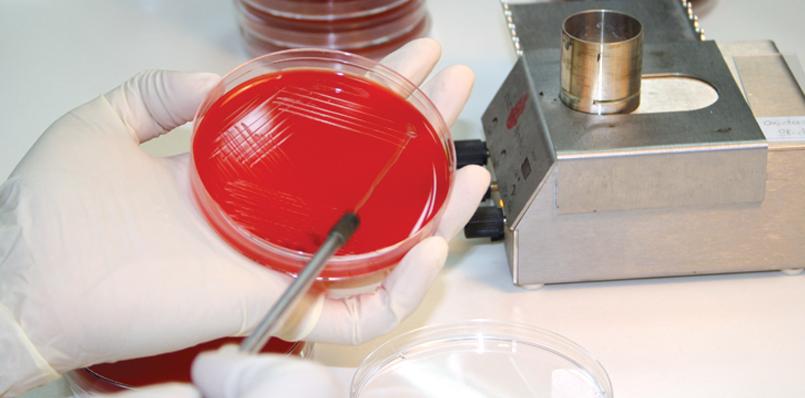 диагностика уреаплазмы, бактериальный посев мазков
