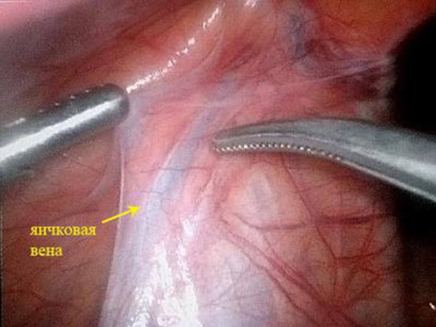 Операция варикоцеле в ростове на дону