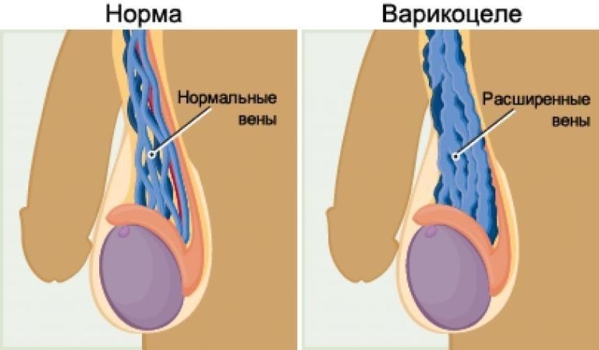 Варикоцеле: фото, причины, симптомы, лечение, в т.ч. операция