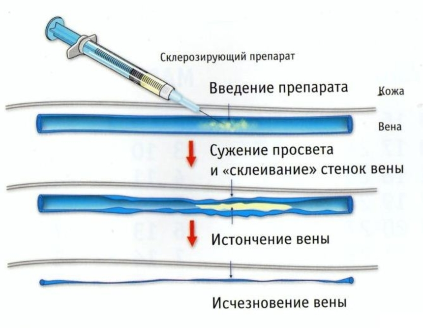 Лечение варикоза: склеротерапия