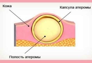 Атерома Рассосется